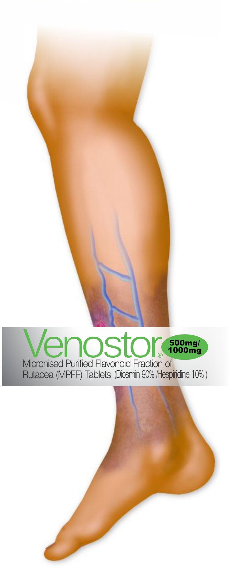 Venostor 174 Micronised Purified Flavonoid Fraction Of