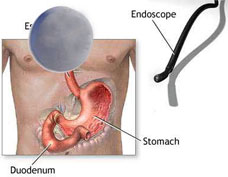 Endoscopy - treatment of Endoscopy , types Diseases, Index A –Z ...