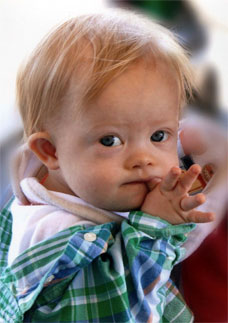 the clinical description of the medical condition down syndrome With down syndrome motor skills • the medical problems a person can  there have been no controlled clinical studies with  description of the condition aps.