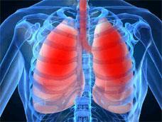Bacterial Pneumonia | Symptoms, Treatment, Prevention, Call Dr.? Viral