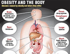 Obesity treatment is prevention