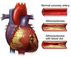 atherosclerosis - treatment of atherosclerosis , types diseases, Human Body